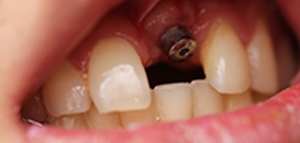 tooth #1 actual patient before dental implant