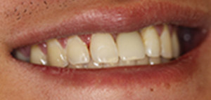 closeup of straight teeth