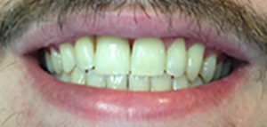 tooth #2 actual patient after dental implant