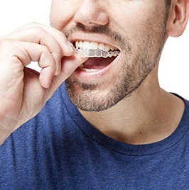 man putting invisalign clear braces on his teeth