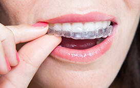 woman putting in invisalign