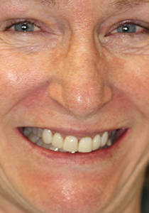 actual patient smiling after getting porcelain veneers