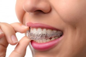 Invisalign in Reston can help you achieve optimum oral health.